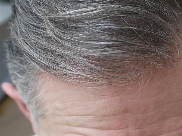 Tóc bạc sớm nên uống thuốc gì?